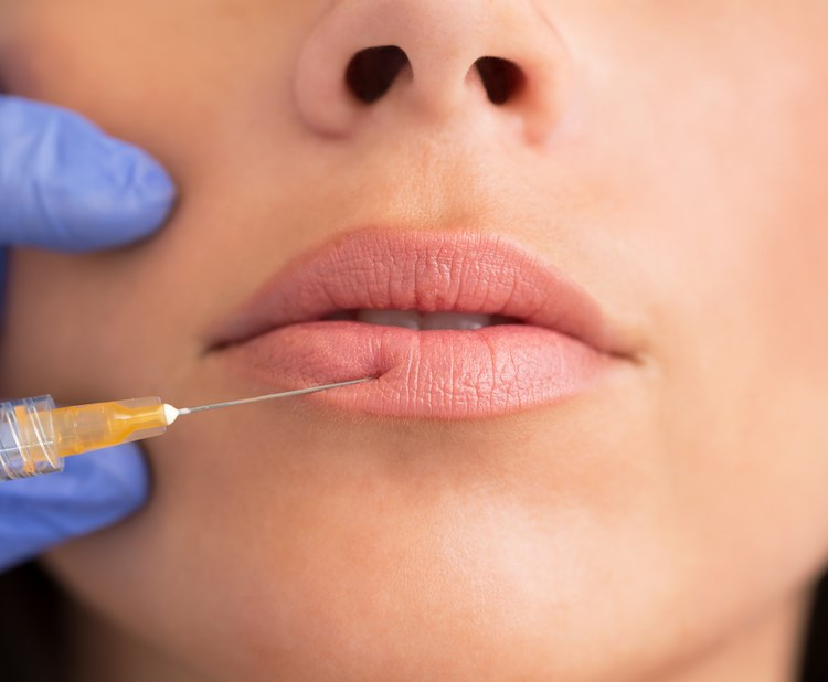 Woman Getting Lip Injection